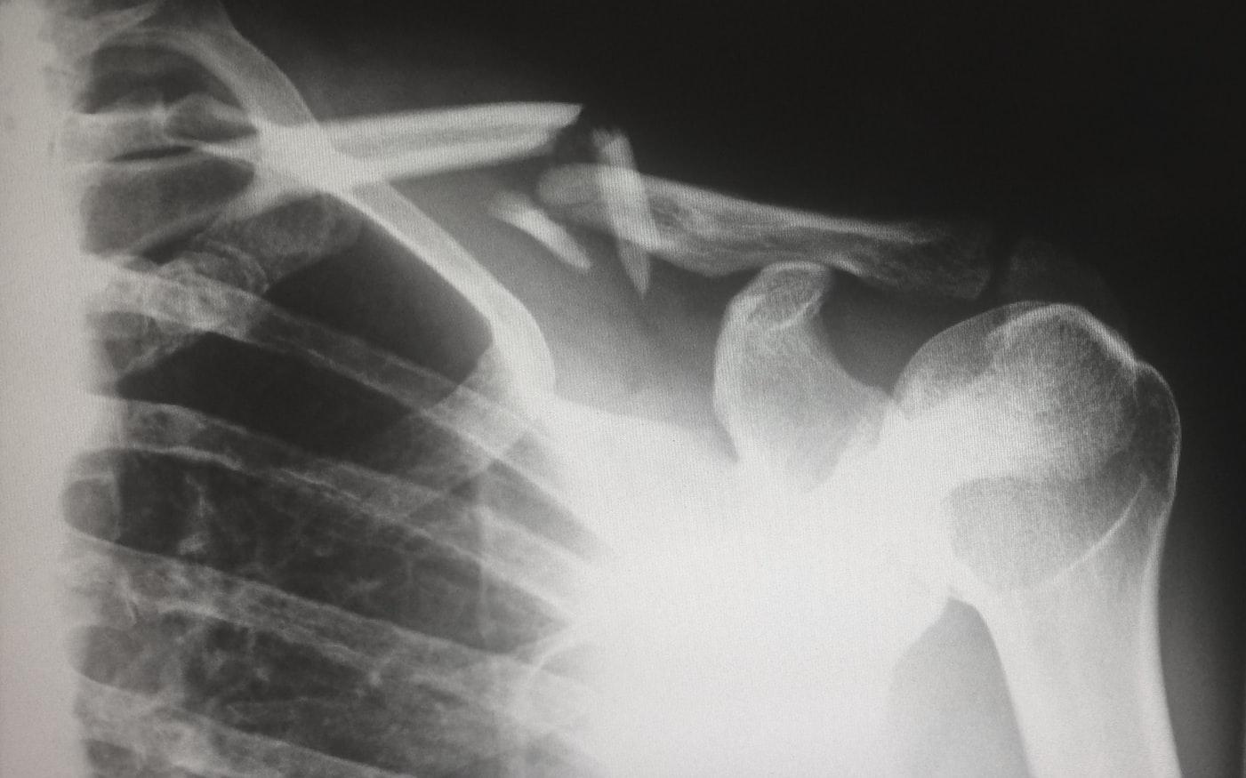 CT – יתרונות המכשיר וחסרונותיו